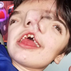 'Miracle' boy with 'two faces' defies odds