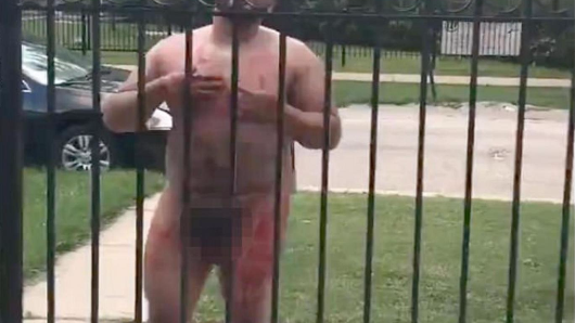 Naked man cuts off penis and goes on rampage in Chicago