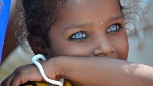 People with blue eyes have one thing in common