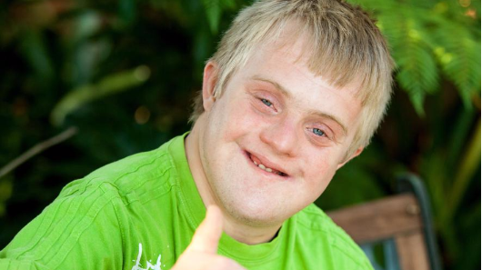 The country where Down's syndrome has almost disappeared