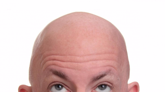 Researchers think they've found a simple cure for baldness