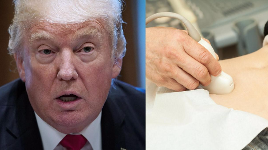 Donald Trump's ban on contraceptives 'could lead to more abortions'