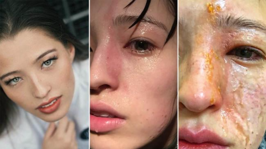 Woman's face burned by oil diffuser