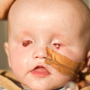 Sydney baby born without eyes